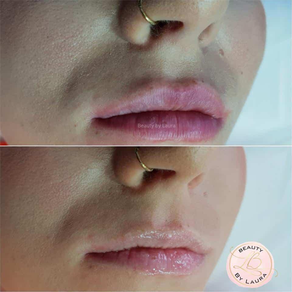 Opleiding hyaluron-pen - Beauty by Laura